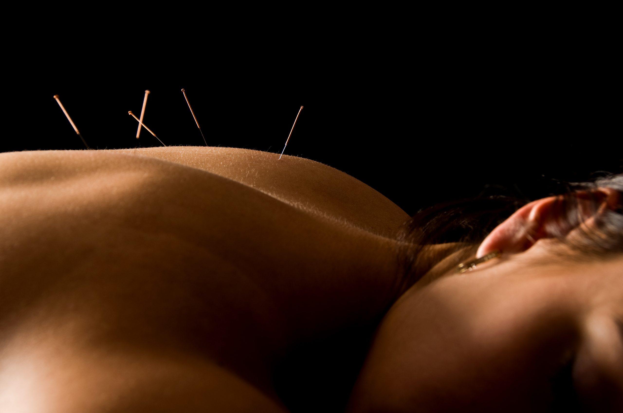 Praticienne médecine traditionnelle chinoise Tours: Acupuncture traditionnelle chinoise à Tours